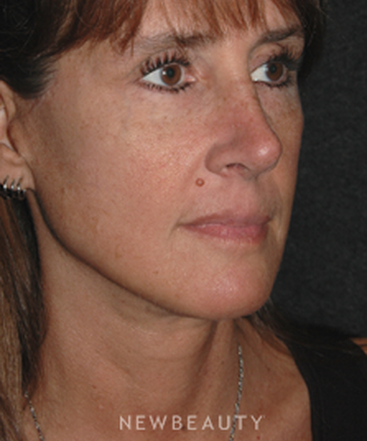 dr-andrew-jacono-endoscopic-facelift-b