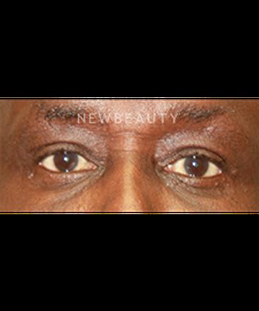 dr-irene-gladstein-eyelift-b