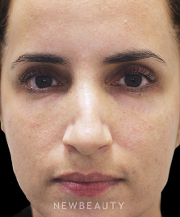 dr-gilly-munavalli-injectables-and-fillers-b