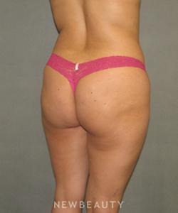 dr-sean-simon-butt-augmentation-b