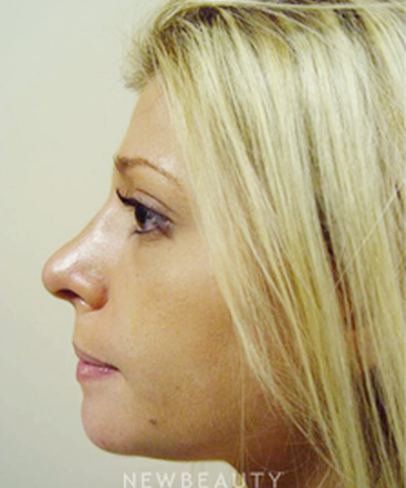 dr-kevin-tehrani-chin-augmentation-facial-implants-rhinoplasty-b