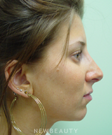 dr-kevin-tehrani-chin-augmentation-rhinoplasty-neck-liposuction-b