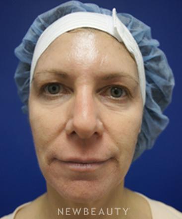 dr-kevin-tehrani-injectablefillers-b