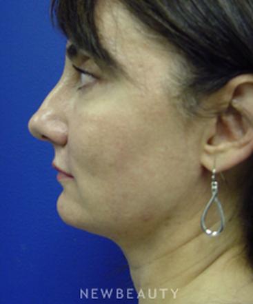 dr-kevin-tehrani-necklift-laser-liposuction-b