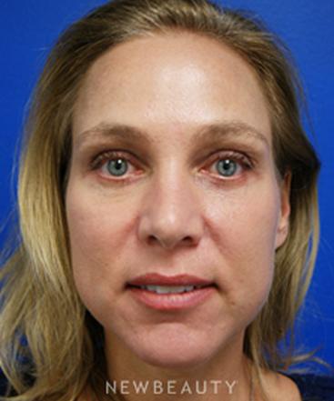 dr-kevin-tehrani-blepharoplasty-chemical-peel-b