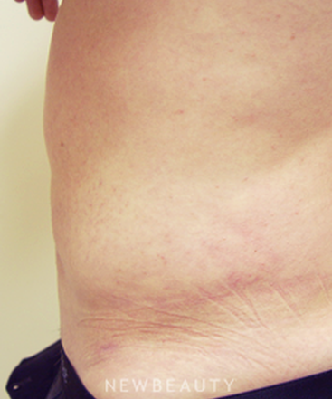 dr-kevin-tehrani-laser-liposuction-liposuction-b