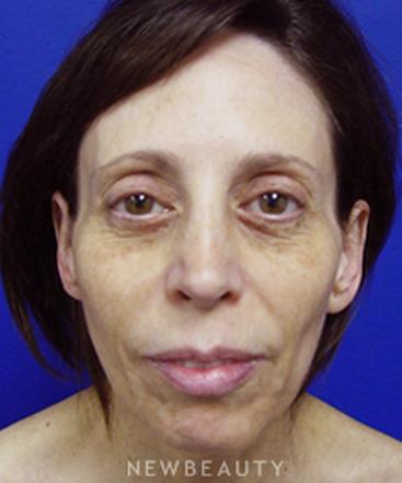 dr-kevin-tehrani-facelift-b