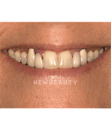 dr-jenifer-back-veneers-crowns-b