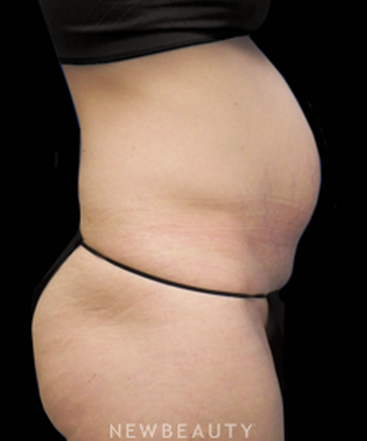 dr-sarah-mcmillan-mommy-makeover-liposuction-tummy-tuck-b
