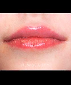 dr-marina-peredo-lip-augmentation-b