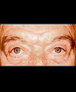 dr-sanjay-grover-blepharoplasty-b