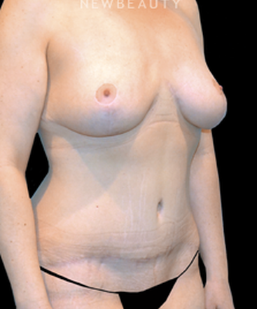 dr-vinod-v-pathy-tummy-tuck-and-breast-reduction-b