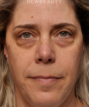 dr-kian-karimi-lower-blepharoplasty-b