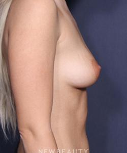 la-jolla-cosmetic-surgery-breast-augmentation-b