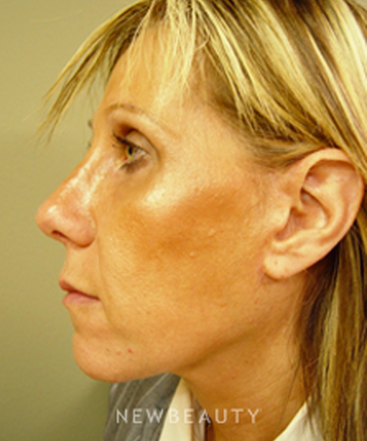 dr-kevin-tehrani-facelift-lower-blepharoplasty-b
