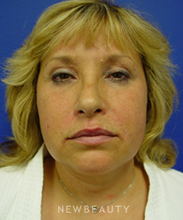 dr-kevin-tehrani-blepharoplasty-chemical-peel-neck-lift-smart-lipo-b