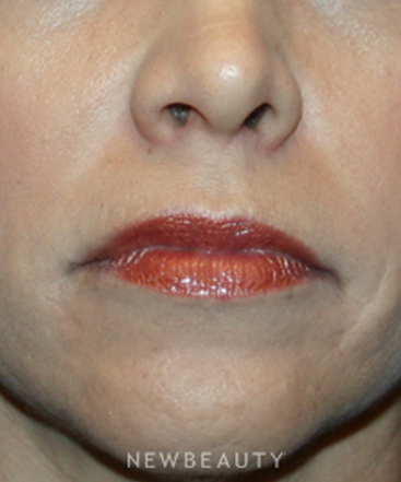 dr-kelly-bomer-injectable-fillers-lip-augmentation-b