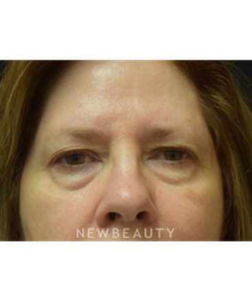 dr-jeffrey-b-wise-blepharoplasty-b