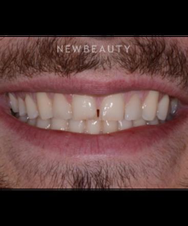 dr-irene-grafman-dental-bonging-b