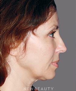 dr-konstantin-vasyukevich-facelift-necklift-b