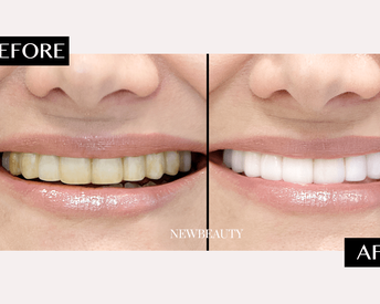 The 6-Minute Solution for Much Whiter Teeth