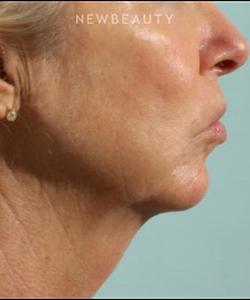 dr-marina-peredo-firmatherapy-for-sagging-skin-b