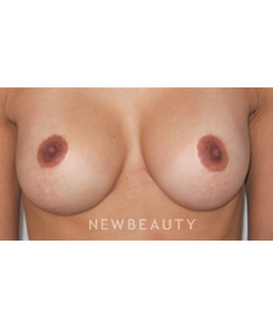 dr-kaveh-alizadeh-naturabra-breast-augmentation-b