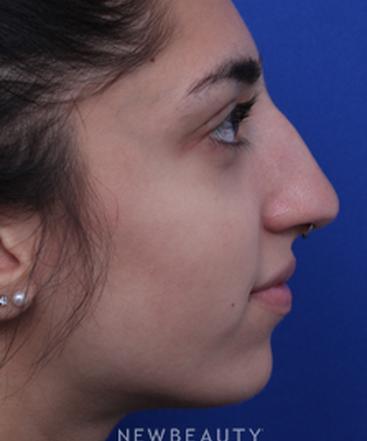 dr-jaimie-derosa-rhinoplasty-b