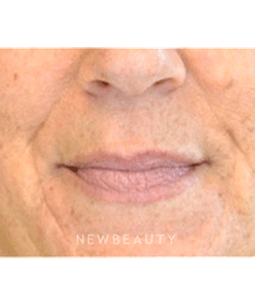 dr-julie-russak-injectables-fillers-b