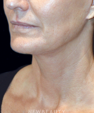 dr-natalie-h-attenello-restoring-youthful-contours-b