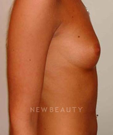 dr-michael-horn-saline-breast-implants-b