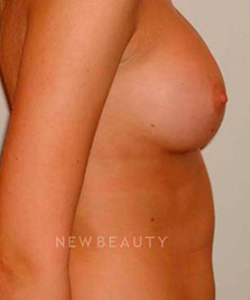 dr-michael-horn-saline-breast-implants-b
