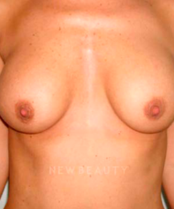 dr-michael-horn-breast-lift-b