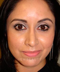 dr-sanjay-grover-rhinoplasty-b