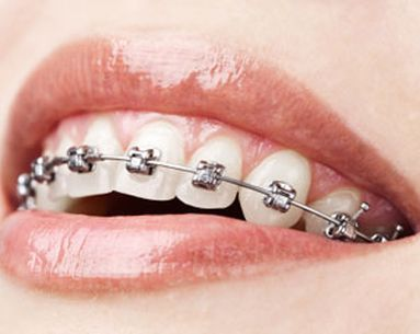 Braces For Grown-Ups