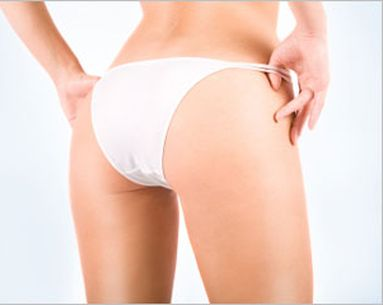 The Genetic Secrets Of Cellulite