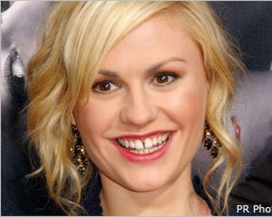 Gap-Toothed And Gorgeous: The Latest Beauty Trend Rebuffs Braces