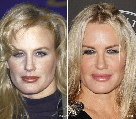 Celebrities with Injections Botox over injected - NewBeauty