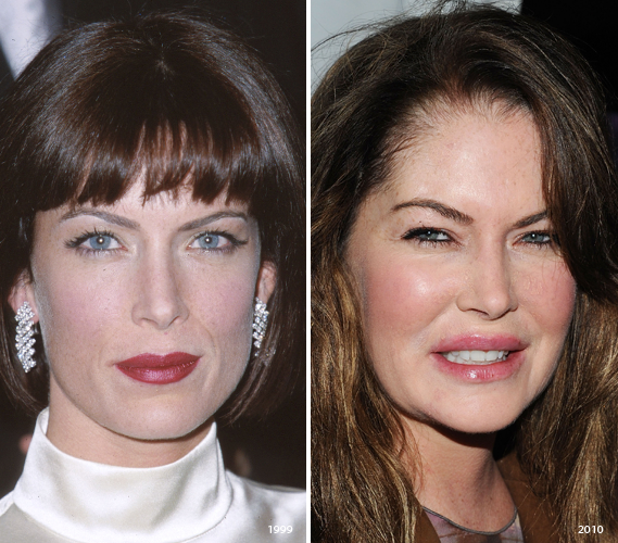 Celebrities With Injections Botox Over Injected