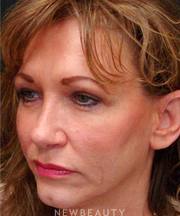 dr-mokhtar-asaadi-eyelid-lift-rhinoplasty-b