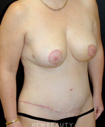 dr-mokhtar-asaadi-breast-reduction-liposuction-tummy-tuck-b