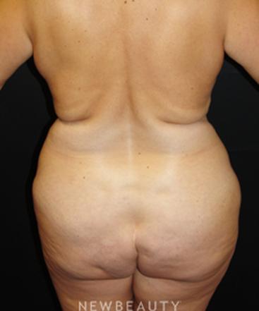 dr-mokhtar-asaadi-liposuction-b
