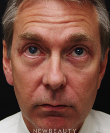 dr-mokhtar-asaadi-eyelid-lift-b