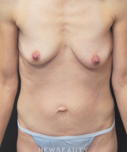 dr-mokhtar-asaadi-breast-implants-tummy-tuck-b