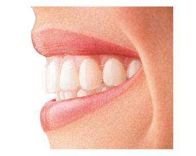 Straighter Teeth In One Season