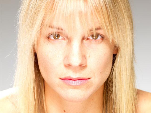 Mandelic Acid Peel - The Dermatology Review