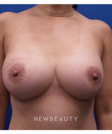dr-kevin-tehrani-breast-implants-b