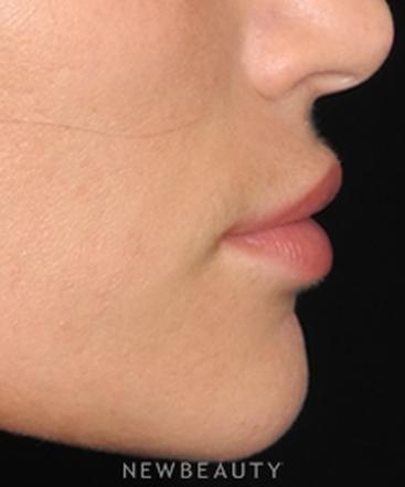 dr-robert-whitfield-lip-enhancement-with-filler-b