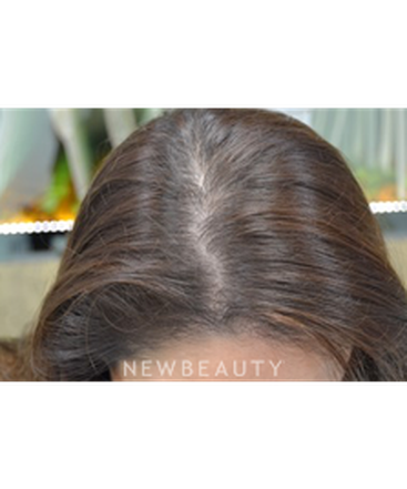 dr-julie-russak-hair-loss-treatment-b