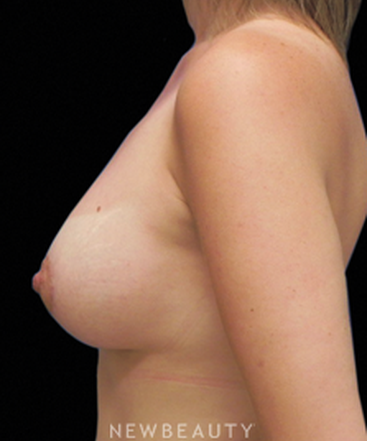dr-sarah-mcmillan-mommy-makeover-tummy-tuck-breast-augmentation-breast-lift-liposuction-b
